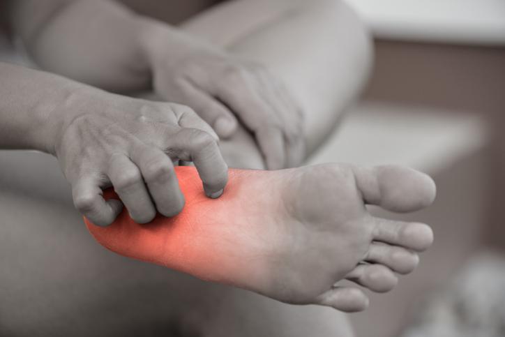 ¿Cómo previnir y acabar con los hongos de los pies?